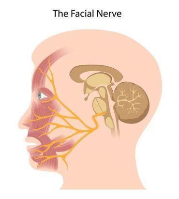 Paralizia faciala periferica